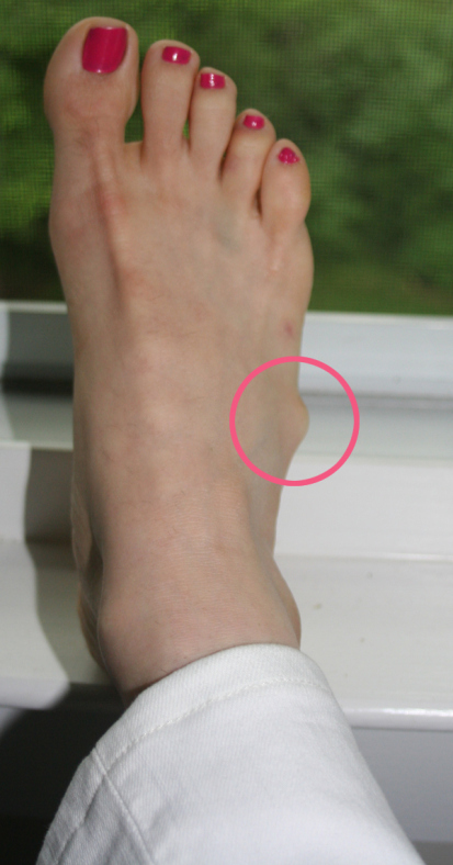ganglion cysts on feet northwest foot care dr frank